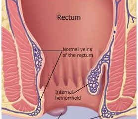 Hemorrhoids external internal
