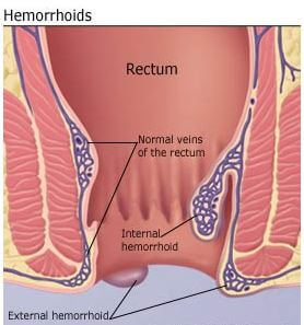 Hemorrhoids external internal