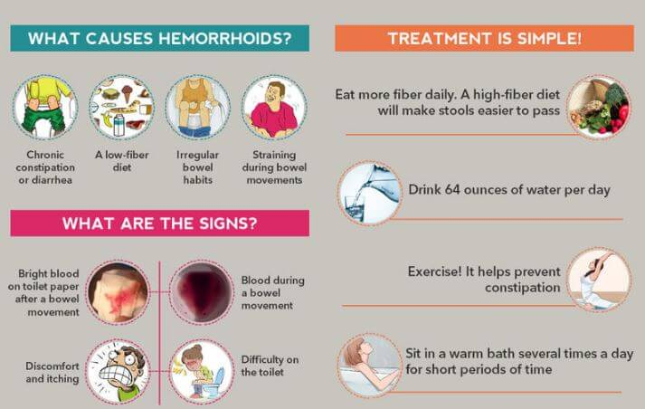 hemorrhoids causes, signs and treatment