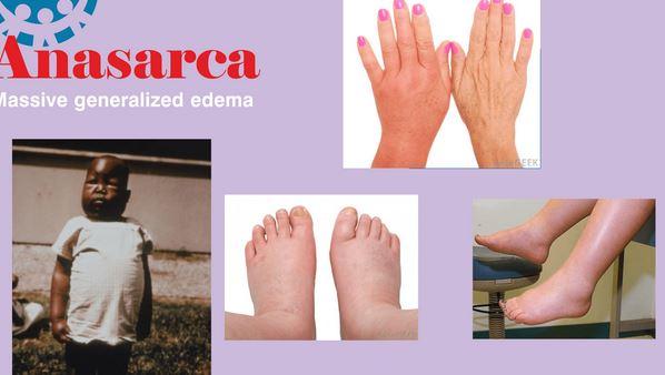 Anasarca symptoms signs images