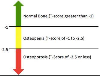 osteopenia t score levels
