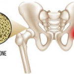 When Does Osteopenia Develop? Who Gets It?